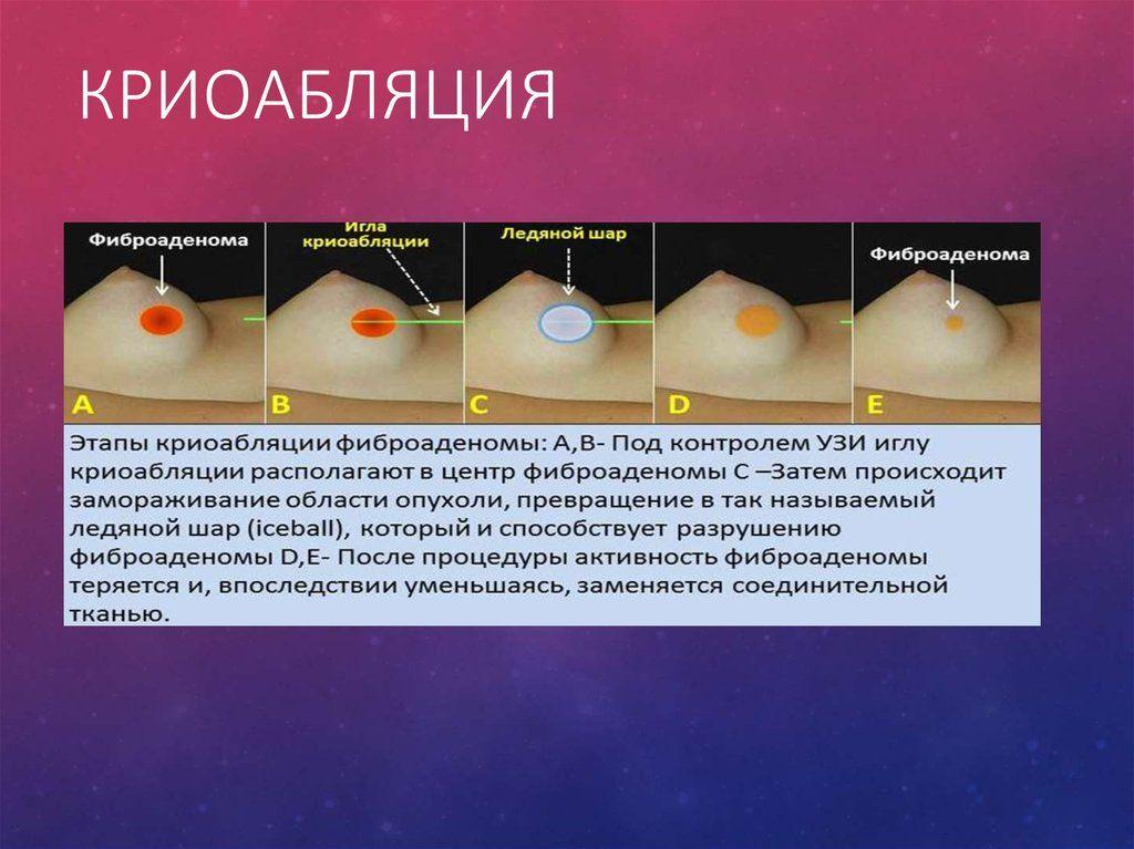 криоабляция фиброаденомы молочной железы