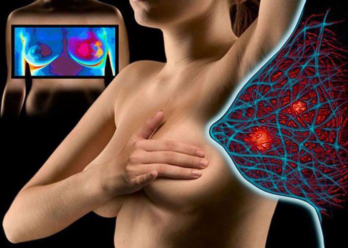вид груди в трех позициях
