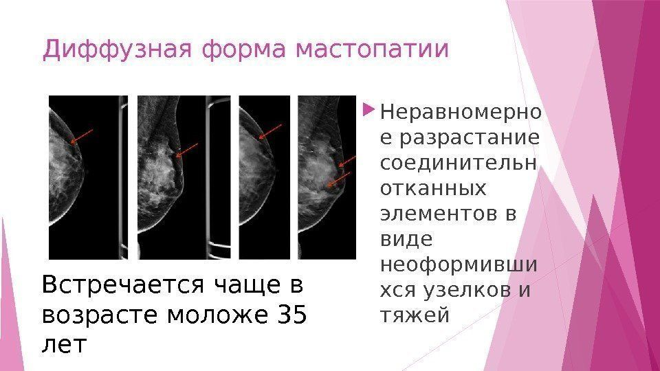 описание болезни с картинкой