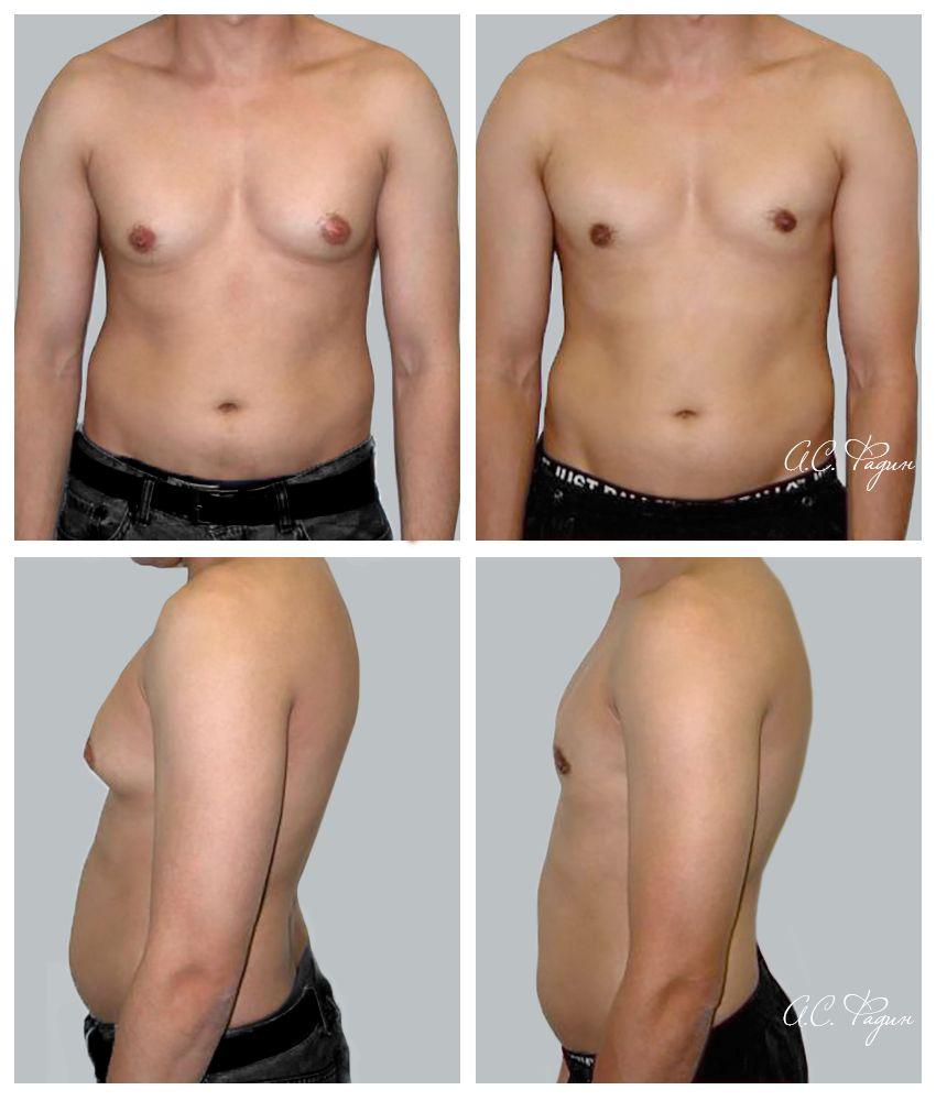 гинекомастия 2 стадия