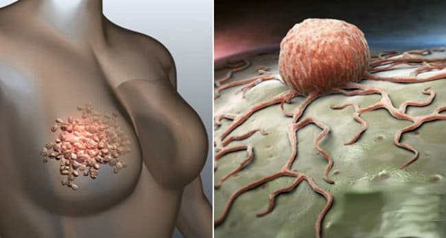 Эластофагия молочных желез