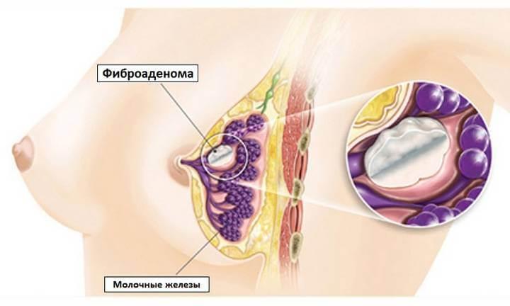 классификация фиброаденомы