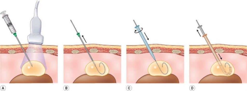 методика биопсии