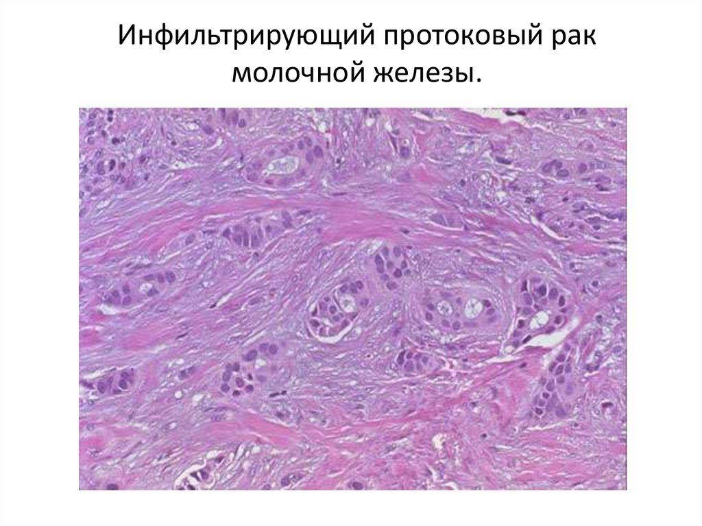 Инфильтрирующая протоковая карцинома