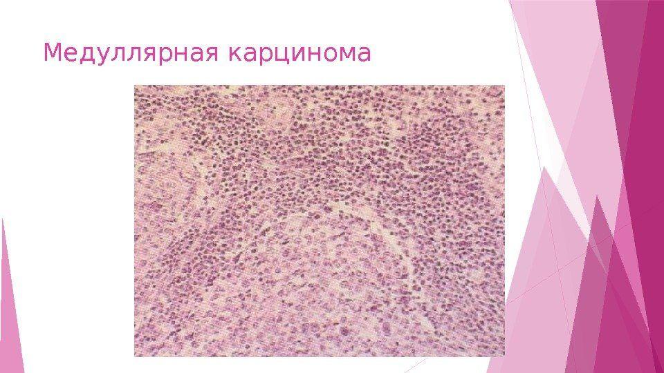 Медулярная карцинома