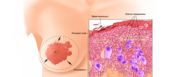 Панцирный рак