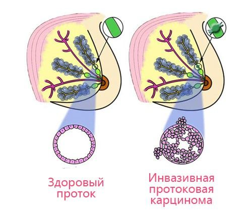 Протоковая карцинома in situ