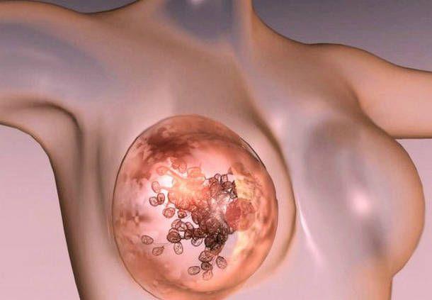 схема грудь