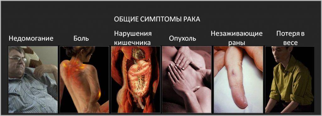 Симптоматика прогрессирования рака