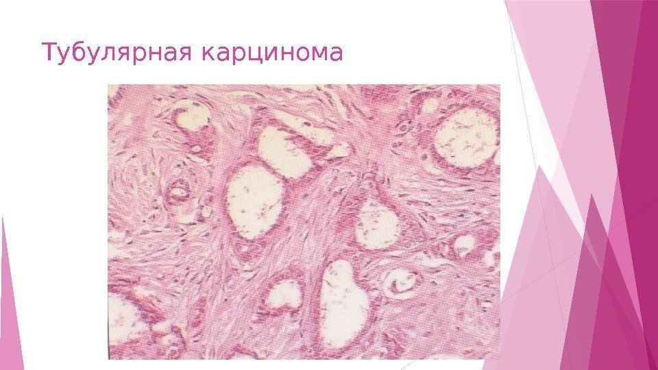 Тубулярный