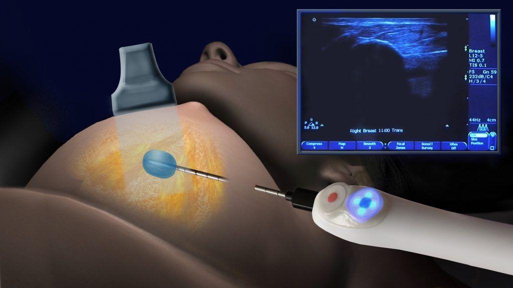Удаление узла в груди