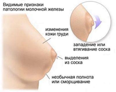 проблемы груди