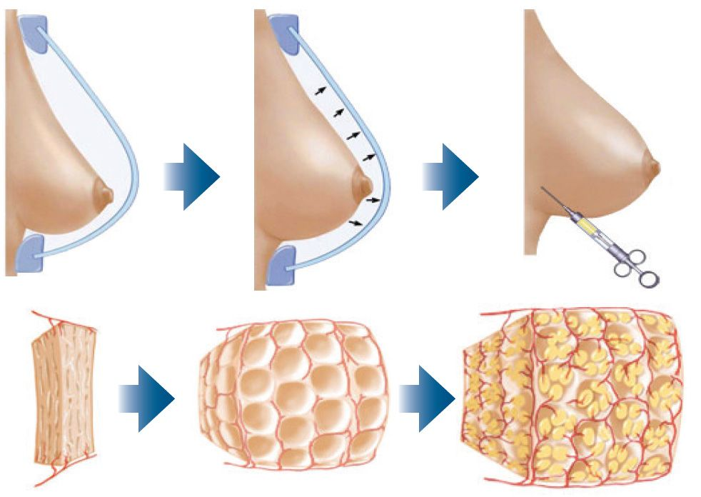 ринопластика груди